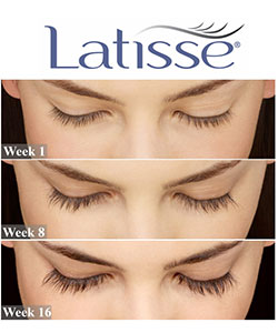 Latisse® (Bimatoprost 0.03% solution)